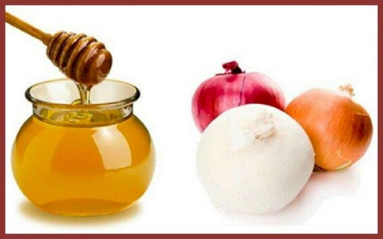 علاج تساقط الشعر بالعسل والبصل