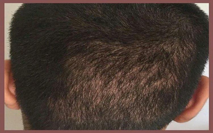 عيوب زراعة الشعر