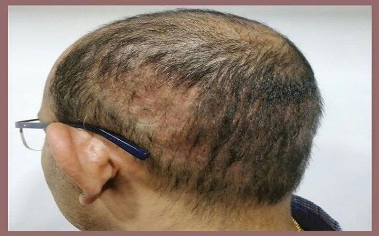 انفلونزا تساقط الشعر